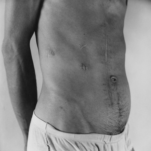 Peter Hujar, Pascal, Scarred Abdomen, 1980, Silbergelatine Abzug. Signiert, betitelt und datiert von Stephen Koch (Nachlassverwalter von Peter Hujar), verso mit Bleistift, 50,8 x 40,6 cm (Blatt). ©The Estate of Peter Hujar, courtesy of Fraenkel Gallery, San Francisco; Pace/MacGill Gallery, New York; Galerie Buchholz, Köln/Berlin/New York; Galerie Thomas Zander, Köln